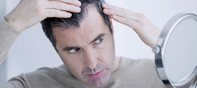 What To Do When You Face Hair Loss