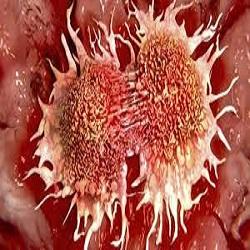 Sinal metabólico freia migração de células cancerígenas