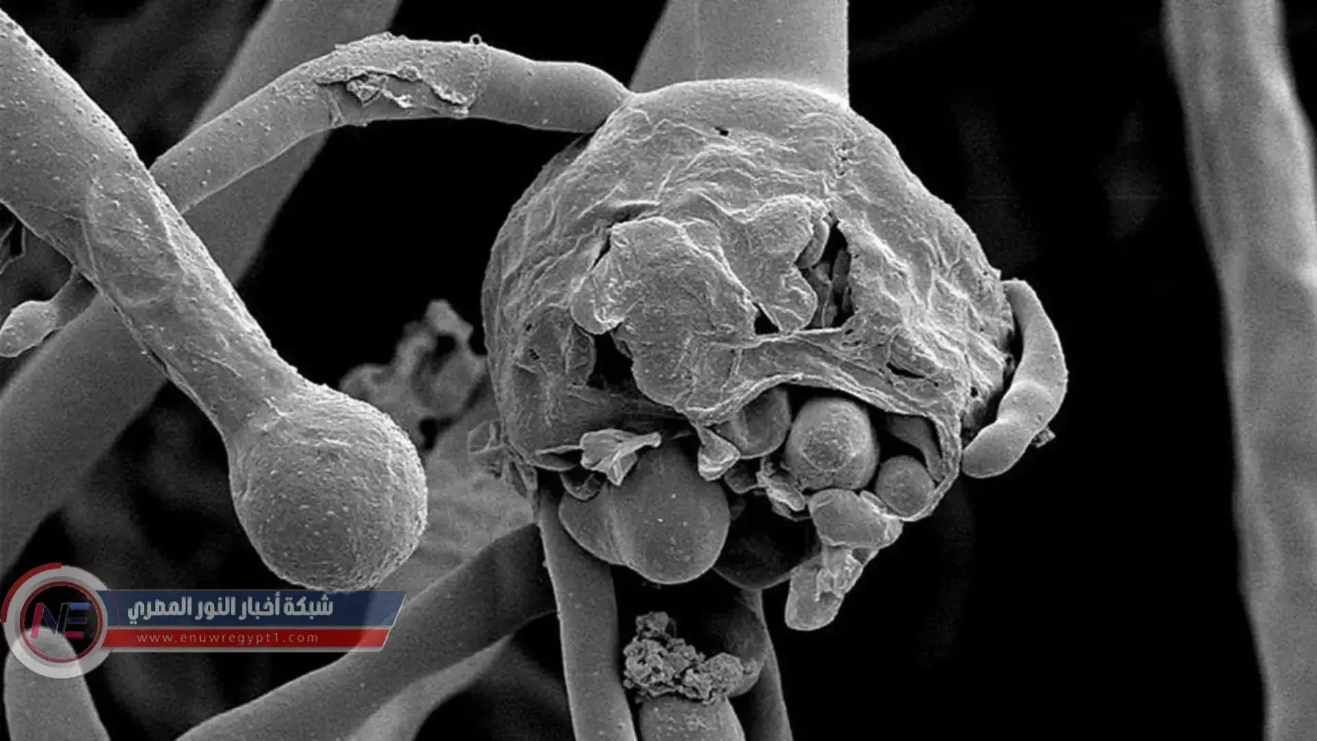 ماهو مرض الفطر الاسود وأنواعه والاعراض المصاحبة له ومن هم الاشخاص الاكثر عرضه للإصابة بالمرض