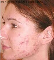 Pimples Remove Karne Ka Tarika in Urdu Pimples Ka Gharelu ...