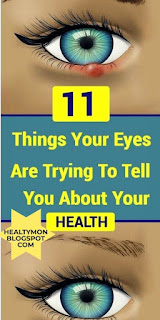 11 Things Your Eyes Are Trying To Tell You About Your Health