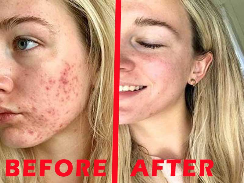 HOW TO REMOVE PIMPLE IN HINDI