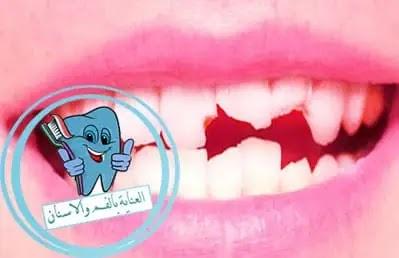 ترميم الضرس, تفتت الاسنان, علاج الضرس المكسور, علاج الضرس المشروخ, اسباب تكسر الاسنان
