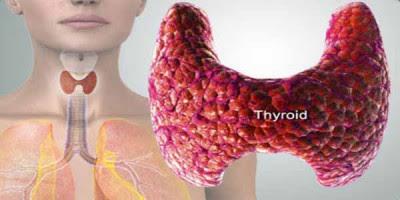 Terapi Pembengkakan Kelenjar Tiroid Dengan Minyak Varash