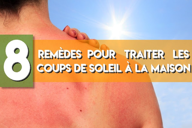 8 Remèdes pour traiter les coups de soleil à la maison
