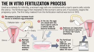 Bayi Tabung atau In Vitro Fertilization