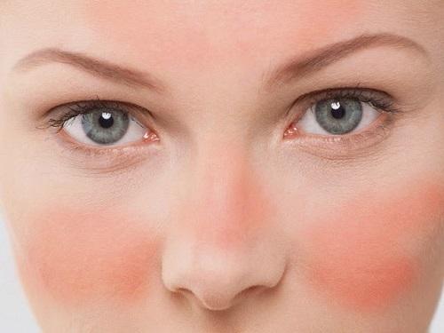 Como Tratar la Rosacea con Medicina Natural