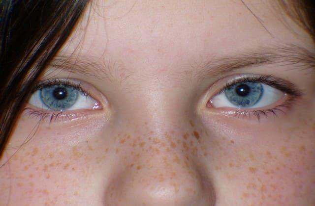 Bertambahnya usia membuat kolagen semakin berkurang, ini bisa menyebabkan wajah lebih mudah keriput