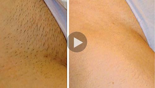 Luis yataco google - Maquina para rasurar vello pubico ...