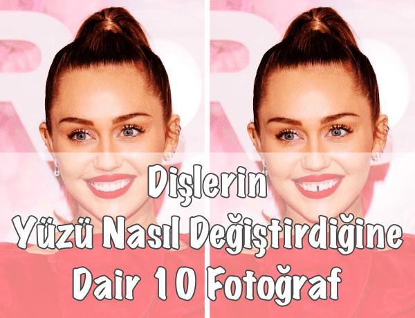 Dişler Yüz Şeklini Değiştirir mi?