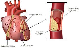 Hình anh trái tim đang bị bệnh mạch vành
