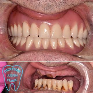 gigi tiruan imidiat immediate denture drg gelar s ramdhani