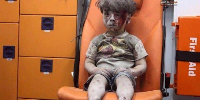 Omran Daqneesh, Bocah Aleppo yang Bersimbah Debu dan Darah Mengguncang Dunia Maya
