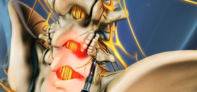 benefits of radiofrequency ablation treatment pain management