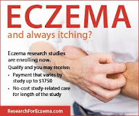 New Clinical Trial for Chronic Eczema