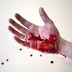These injuries can stop immediately with the easy way of bleeding  | Timesok.com