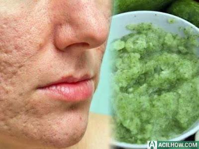 8 Cara Mengecilkan Pori Pori di Wajah dengan Bahan Alami - Acilhow.com