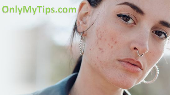 Treatment of Pimples and Acne with Ayurveda