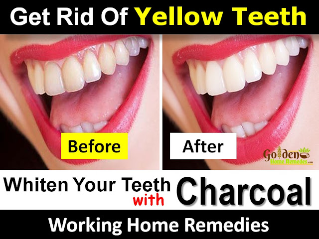Charcoal For Teeth Whitening, Charcoal Teeth Whitening, Teeth Whitening With Activated Charcoal, How To Get Rid Of Yellow Teeth, How To Use Charcoal For Teeth Whitening, Teeth Whitening With Activated Charcoal, Is Charcoal Good For Teeth Whitening, Teeth Whitening Using Activated Charcoal