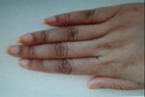 सामुद्रिक शास्त्र में जहां करतल(हथेली), करतल की रेखाएं, उंगलियां और नाखून का सूक्ष्म अध्ययन किया जाता है, वहीं कर पृष्ठ यानी हथेली के पिछले हिस्से का भी गहन विश्लेषण किया जाता है।