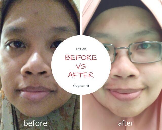 before & after perawatan CTMP