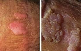 Foto Obatalami menyembuhkan Vagina Muncul Daging Tumbuh Kasar Jika Di Raba