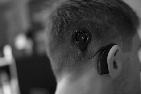 cochlear implant scar and speech processor