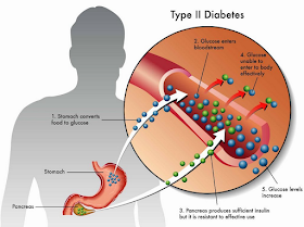 Diabetes Melitus Tipe 2 - Pengertian, Manifestasi Klinis, Diagnosis, Tatalaksana