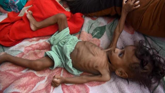 ONU califica catastrófica situación de civiles en Yemen