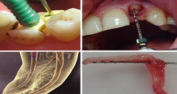 ce nu iti spun stomatologii