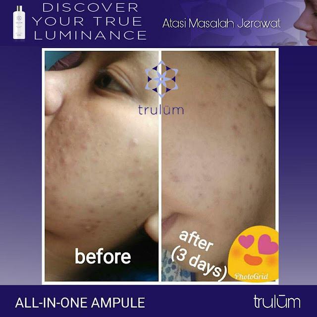 Jual Serum Penghilang Jerawat Trulum Skincare Peunaron Aceh Timur