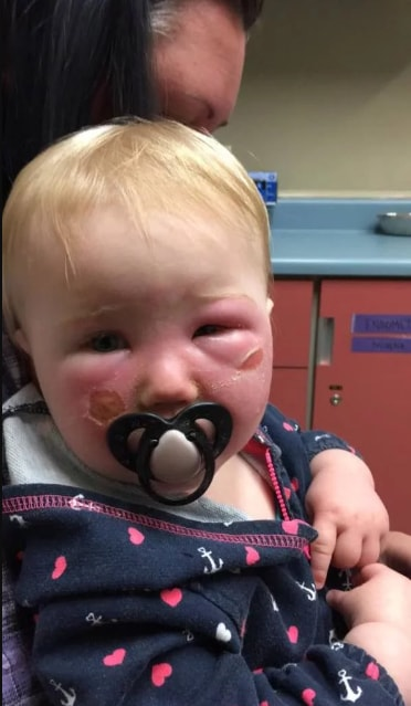 baby had severe burns