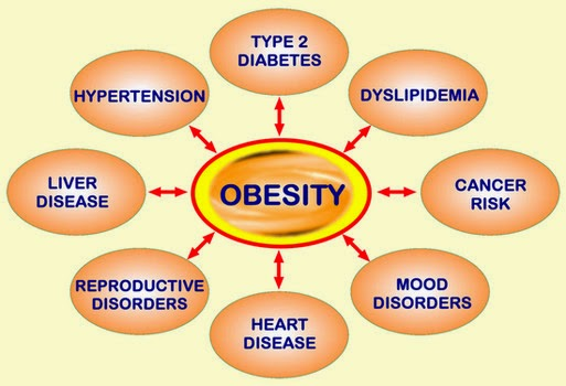 Obesity - Cause and Cure and Control