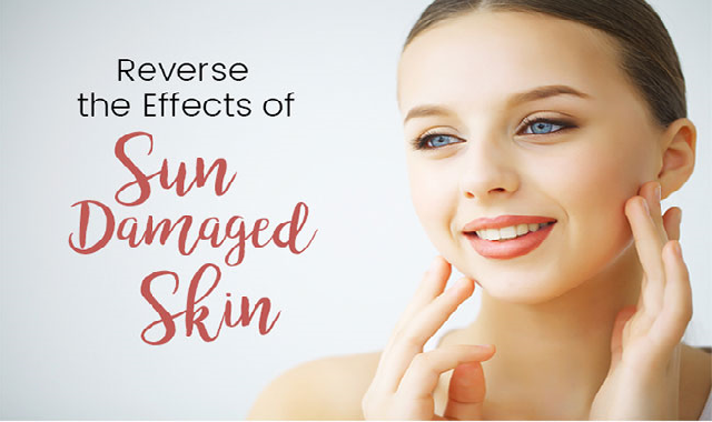 5 Ways to Fix Sun Damaged Skin #infographic