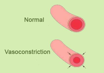 Vasokonstriktio
