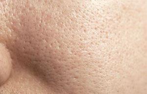 بشرة دهنية