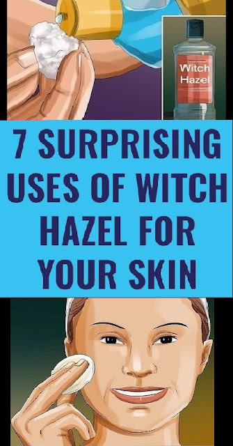 How You Can Use Witch Hazel to Enhance Your Beauty