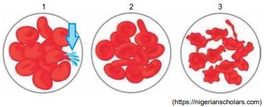 FAMERP 2021: As figuras ilustram as modificações que ocorreram em três conjuntos de hemácias humanas após serem mergulhadas em três soluções diferentes, 1, 2 e 3.