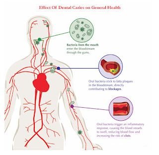 infection of tooth can effect on health, blood vessels, brain