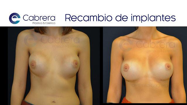 Caso 1 recambio de implantes Córdoba