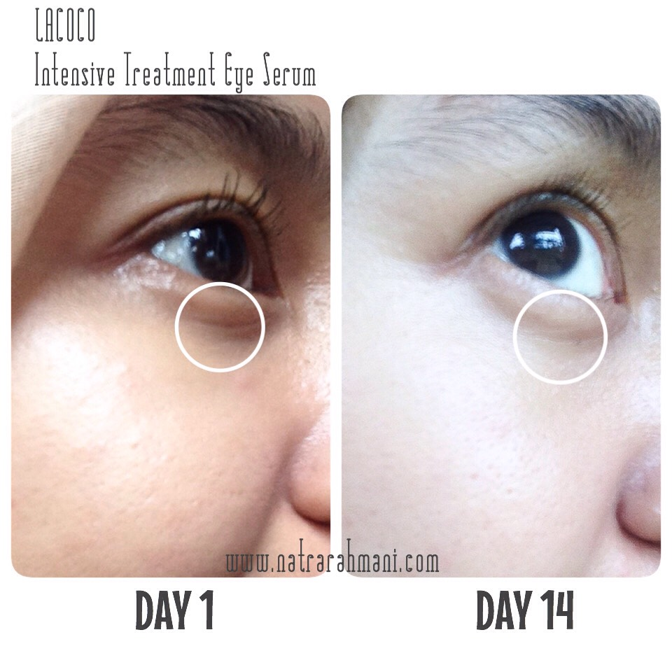 lacoco-intensive-treatment-eye-serum-natrarahmani