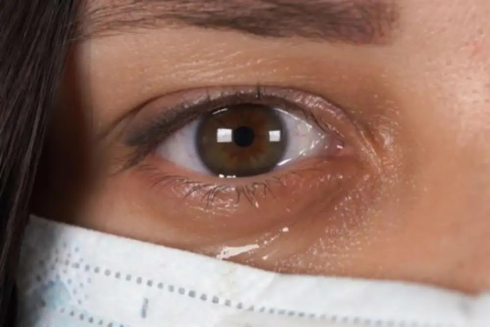 Dr. Irina Lishchenko is a Russian specialist who explains the relationship between corona and eye diseases