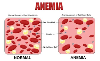 Anemia, a pathological condition of low level of haemoglobin