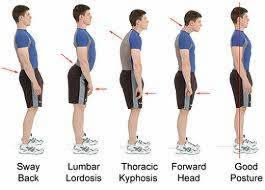 Wrong and Right Standing Posture