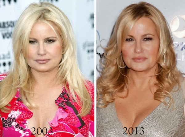 Jennifer Coolidge Plastic Surgery Botox, Facial Fillers and Lips