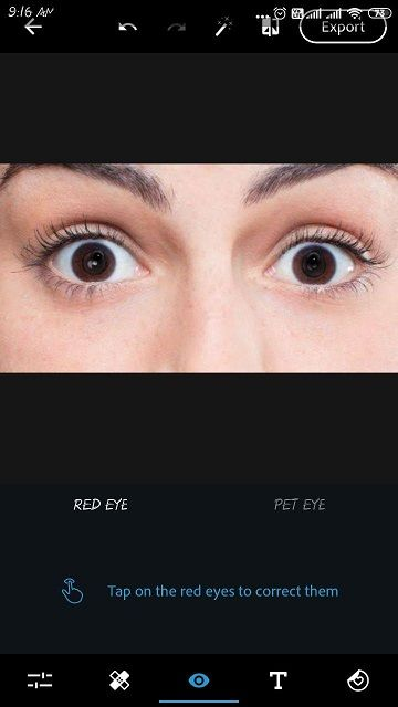 red eye problem remove kaise kare