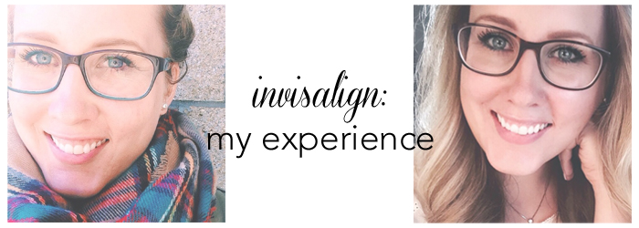 experiences with invisalign