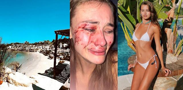 Τουρκία: Διάσημο μοντέλο από την Ουκρανία ξυλοκοπήθηκε σε beach bar