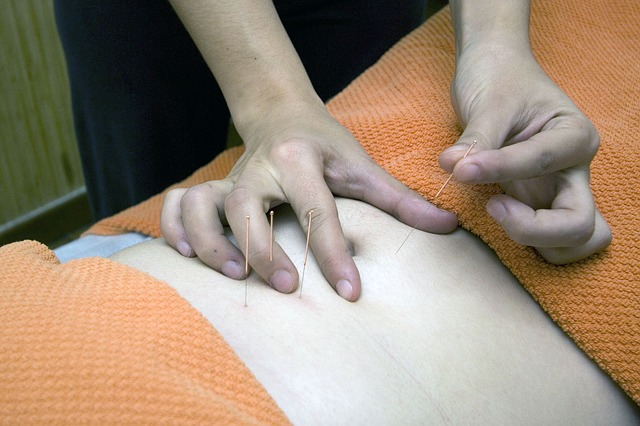 Acupuncture can be utilized for anybody