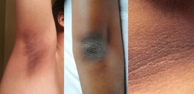 Complete Guide For Removing Dry and Dark Skin on Your Neck, Elbows, Knees and Underarms
